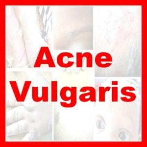 acne vulgaris app